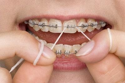 Cómo limpiar los aparatos de ortodoncia