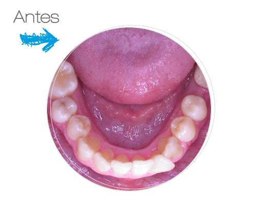 Antes Ortodoncia Invisible