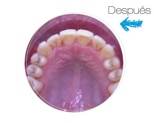Tratamiento Ortodoncia Invisible Después 4