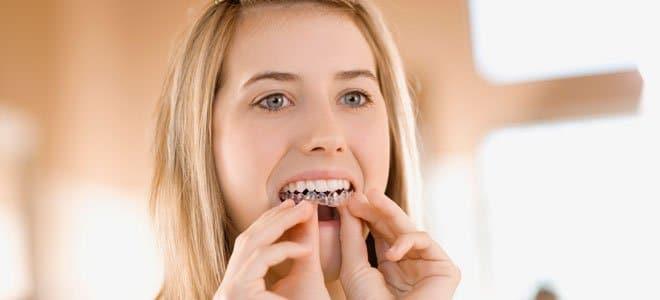 Ortodoncia lingual e Invisalign