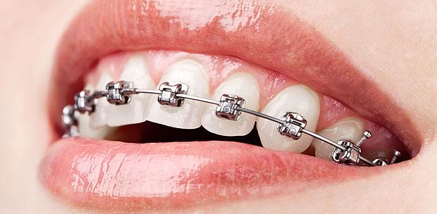 implantes después de ortodoncia