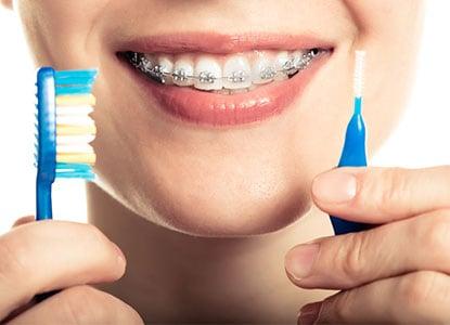 cepillado-ortodoncia