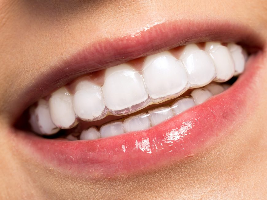 ortodoncia-transparente-valencia